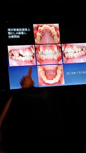 アルファ歯科 サムネイル